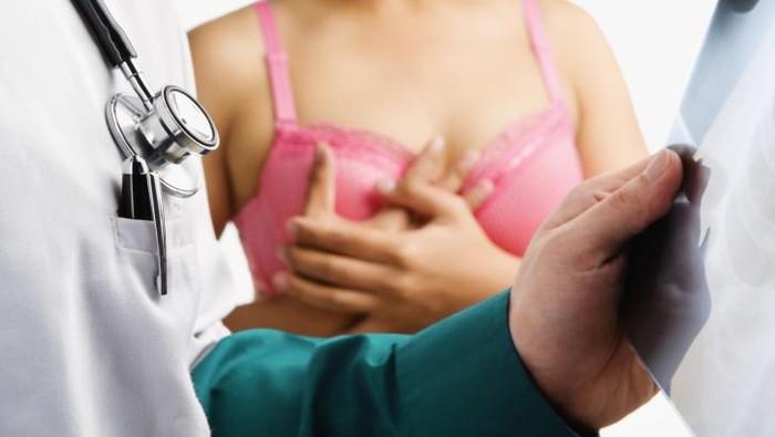 Kanker payudara merupakan kanker paling banyak pada perempuan (Foto: thinkstock)