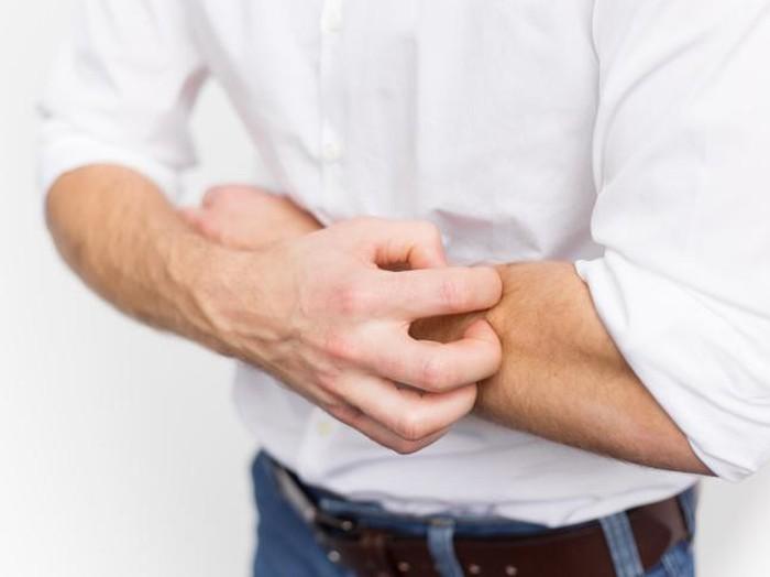Ilustrasi pria terkena kutu air di tangan/Foto: thinkstock