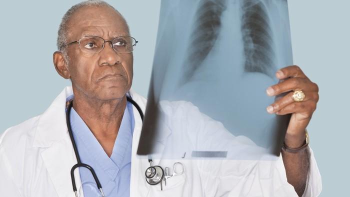 Hasil scan dokter menunjukkan setumpuk benda asing dalam perutnya. Foto: Thinkstock
