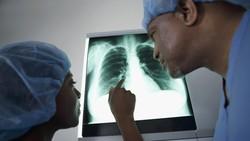 Ancaman Wabah Pneumonia Misterius di Kazakhstan