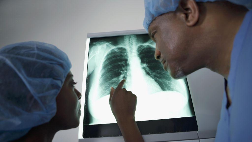 Paru-paru Terisi Cairan, Bisakah Disembuhkan?