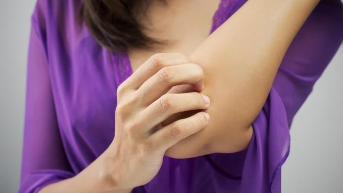 Wanita di Inggris alami penyakit langka yang sebabkan dirinya hanya mandi dua kali dalam setahun. Foto: thinkstock