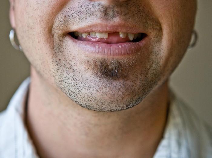 Awas gigi ompong bisa berkaitan dengan peningkatan risiko sakit jantung. (Foto: thinkstock)