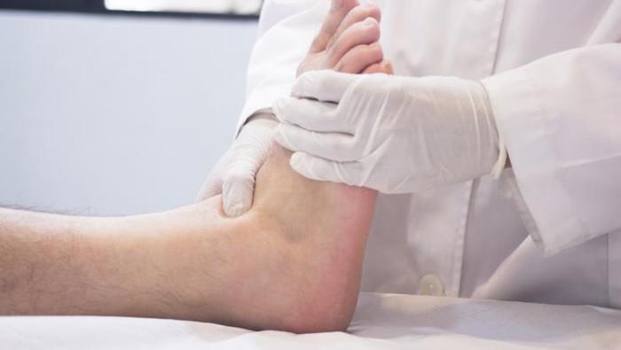 Menjaga kesehatan kaki bagi pengidap diabetes. (Foto: Thinkstock)