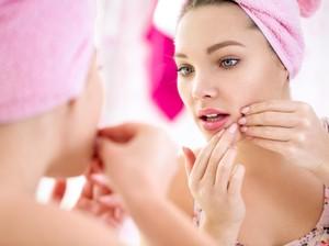 Perawatan Komedo & Jerawat yang Tepat Menurut Dr. Pimple Popper