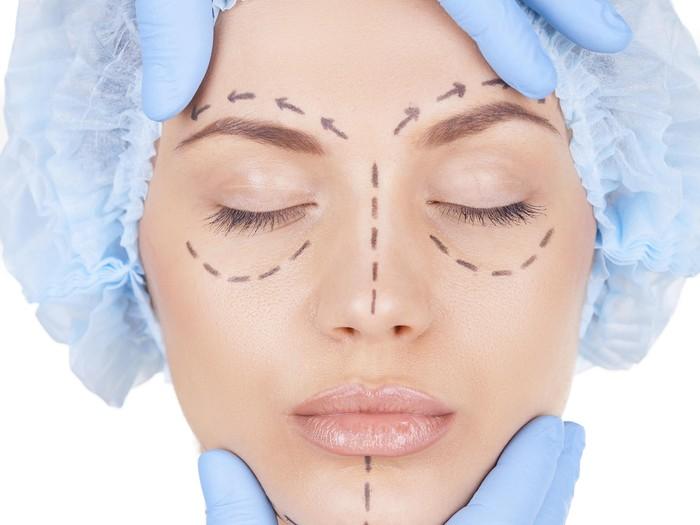 Ilustrasi operasi wajah Foto: Thinkstock