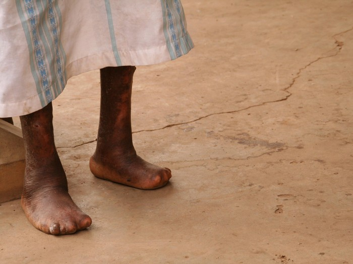Penyakit kusta masih banyak di temukan di Indonesia. Foto: Thinkstock