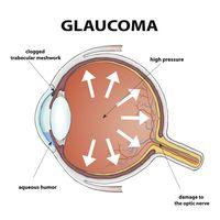 Glaukoma dan katarak sama-sama sebabkan kebutaan