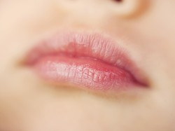 Sadis, Bibir Wanita Ini Nyaris Putus Digigit Mantan Pacar yang Posesif