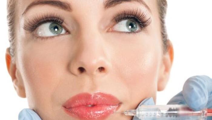 Ilustrasi filler bibir. Foto: Thinkstock