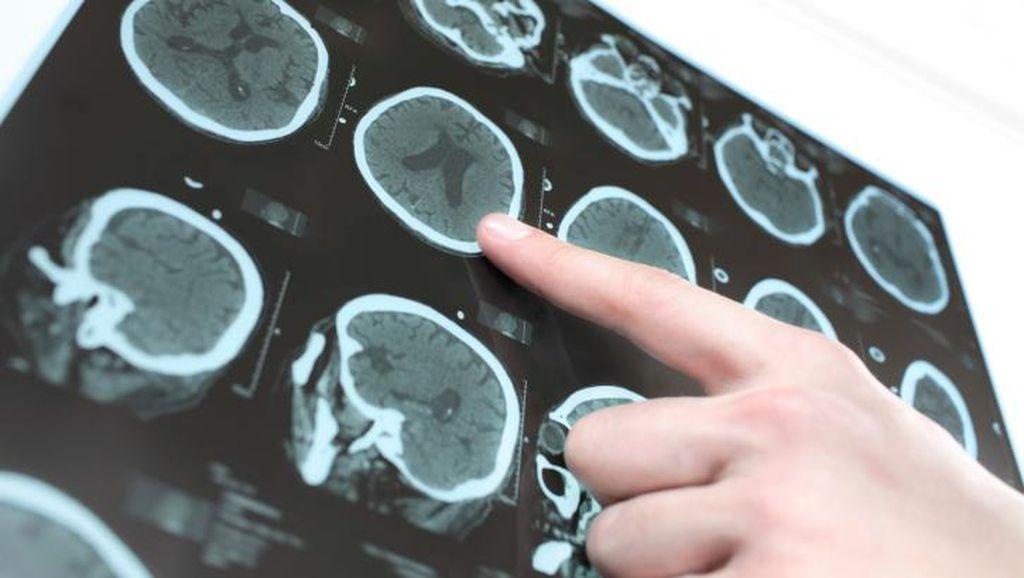 Hii Ngeri! Dokter di Kenya Lakukan Operasi Otak pada Pasien yang Salah