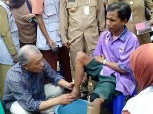 Dubes WHO Rela Cuci Kaki Pasien Lepra di RS Kusta Mojokerto