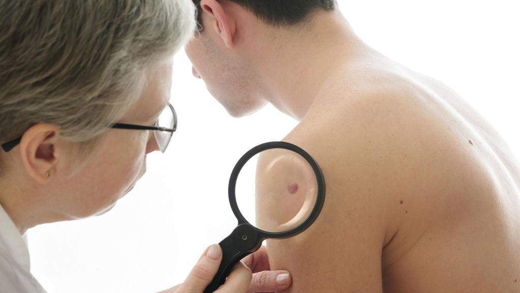 Kenali Faktor Risiko Kanker Kulit, Sinar UV Hingga Tahi Lalat