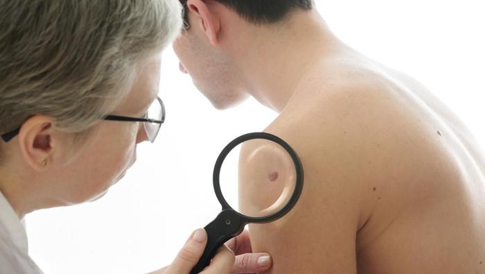Bisakah laser menghilangkan tanda lahir di kulit? (Foto: Thinkstock)