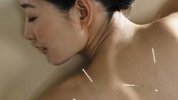 Akupuntur Diklaim Sebabkan Paru-paru Wanita Ini Kolaps