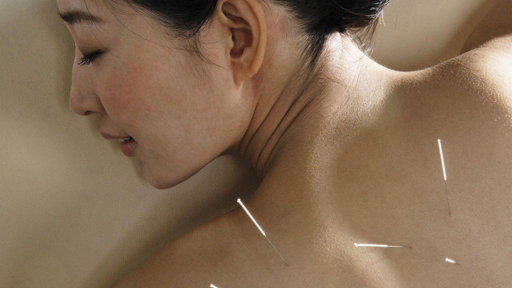 Benar Nggak Sih Terapi Akupunktur Tingkatkan Peluang Hamil?