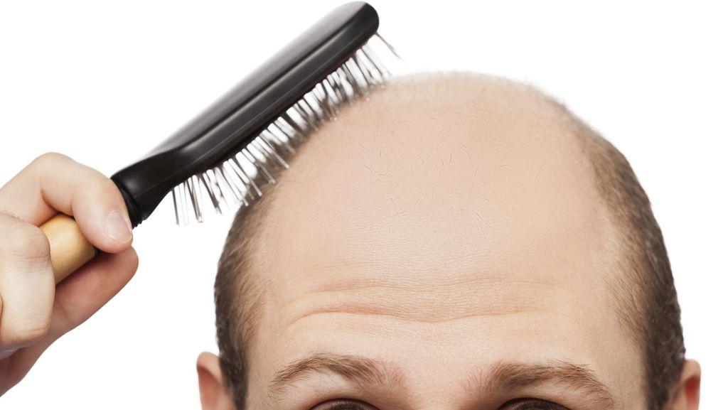 Alasan Haru di Balik Permintaan Ayah Agar Rambutnya Dicukur Habis
