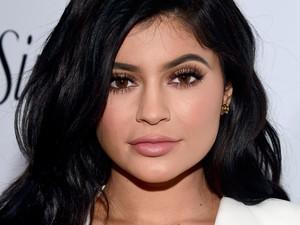 6 Selebriti dengan Bibir yang Banyak Jadi Inspirasi Injeksi Filler