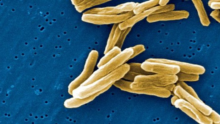 Under a high magnification of 15549x, this scanning electron micrograph, SEM, depicted some of the ultra structural details seen in the cell wall configuration of a number of Gram-positive Mycobacterium tuberculosis bacteria. As an obligate aerobic organi