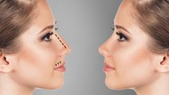 Hidung Palsu Ini Banyak Dipakai Selebgram untuk Terlihat Mancung