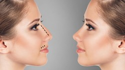 Ingin Punya Bentuk Hidung Mirip Artis Korea? Simak Kata dr Tompi