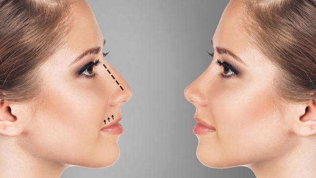 Ilustrasi operasi hidung