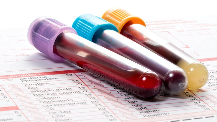 Tes darah