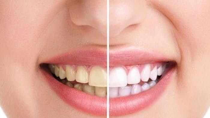 Cara membuat gigi putih