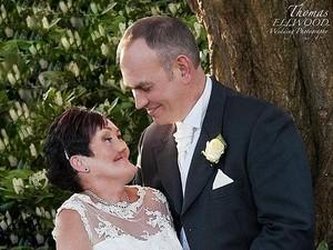 Wajah Rusak karena Kanker, Andrea Tak Percaya Ada Pria yang Cinta Padanya