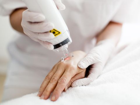 Terapi laser sudah sering diaplikasikan untuk berbagai masalah kulit.