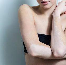 Mereka Tetap Semangat dan Pede Meski Berkulit Belang Akibat Vitiligo