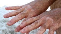 Di Area Tubuh Ini Umumnya Vitiligo Lebih Sering Muncul