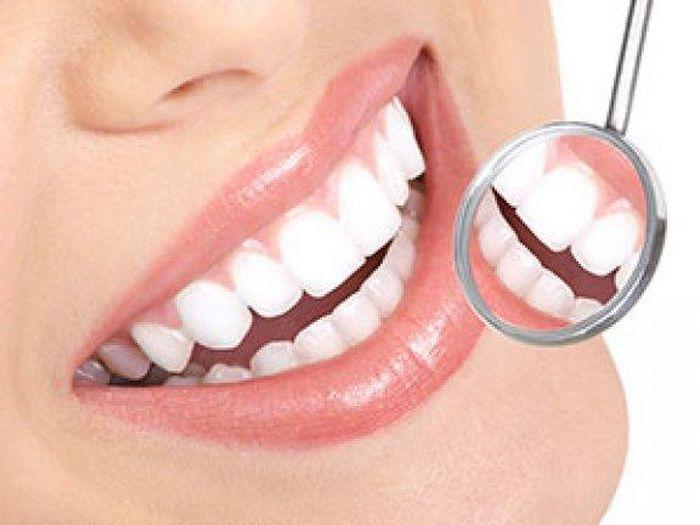 Berbagai Faktor Yang Bikin Gigi Jadi Berwarna Kuning Atau Kecokelatan
