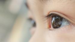 Kena Sinar Laser, Retina Mata Bocah Ini Terbakar