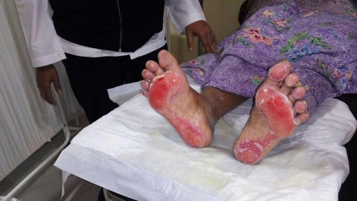 Kaki jemaah haji yang melepuh (Foto: Kepala Pusat Kesehatan Haji dr Muchtaruddin Mansyur, SpKO)