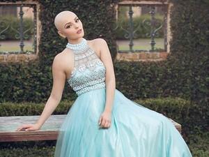 Viral, Foto Model Cantik yang Botak karena Kanker