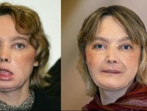 Penerima Transplantasi Wajah Pertama Meninggal Dunia