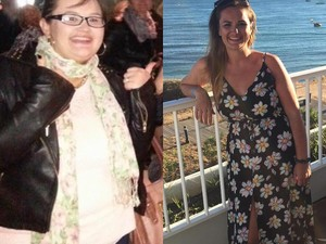 Hobi Unggah Foto Makanan, Wanita Ini Turun Berat Badan Hingga 38 Kg