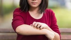 Remaja Ini Alergi Air Matanya Sendiri, Kok Bisa?