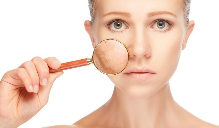 Sudah memakai lotion tapi kulit masih kering sampai pecah-pecah, itu tandanya kulit kekurangan kelembabannya karena dehidrasi atau kekurangan cairan. Foto: iStock
