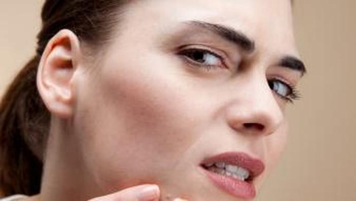 5 Tanda Jerawat Muncul Memang Karena Masalah Hormon