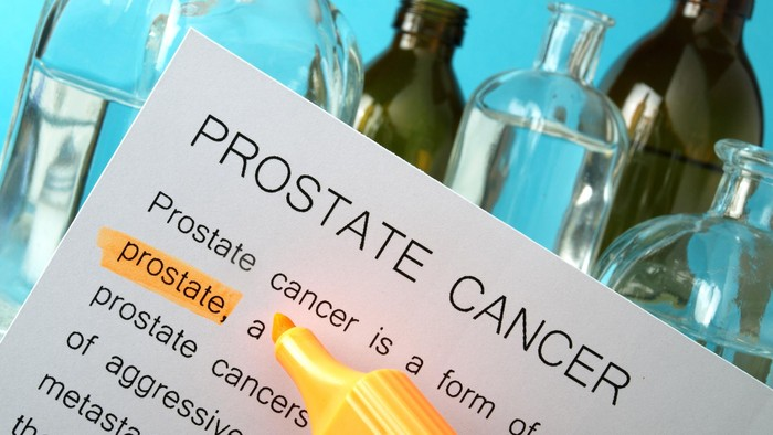 Ilustrasi kanker prostat. Foto: ilustrasi/thinkstock