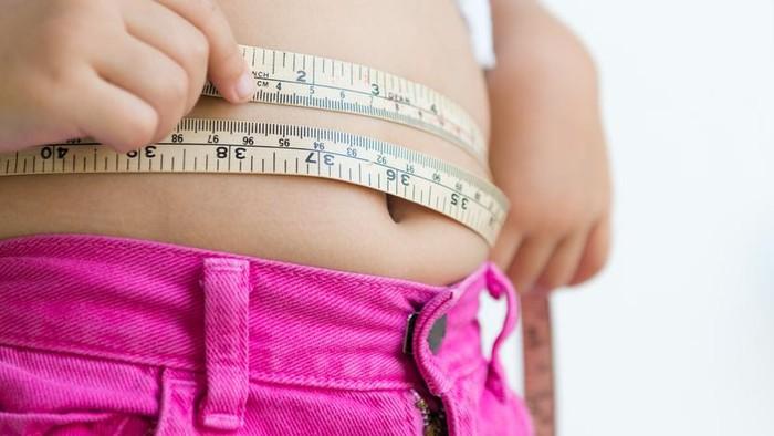 Ilustrasi obesitas pada anak. Foto: iStock