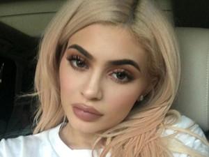 5 Hal yang Perlu Diperhatikan Sebelum Suntik Filler Seperti Kylie Jenner