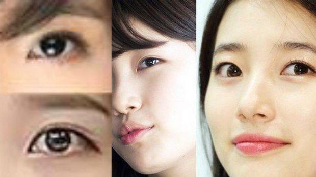 10 Prosedur Kecantikan Yang Aneh Dan Tak Biasa Di Korea Selatan