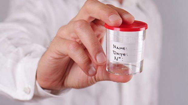 Dapat Membuat Kulis Halus dan Berbagai Mitos Lainnya Soal Sperma