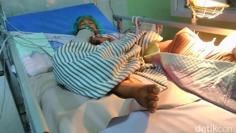 Ini Jawaban Rumah Sakit dr Saiful Anwar Soal Kaki Setyo yang Membusuk
