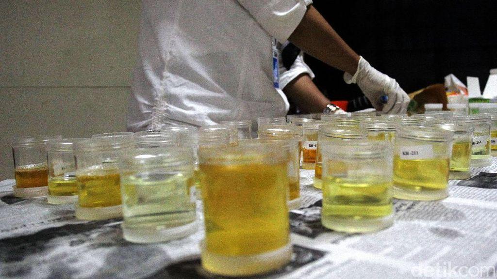 5 Hal Ini yang Bisa Picu Hasil Positif Palsu Pada Tes Narkoba