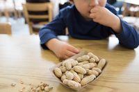 Alergi makanan kacang.