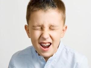Seberapa Perlu Anak Pakai Kawat Gigi Agar Giginya Tumbuh Rapi?